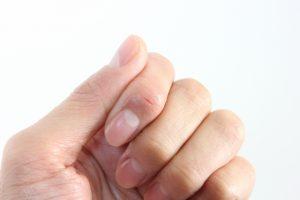 指の乾燥・ひび割れ